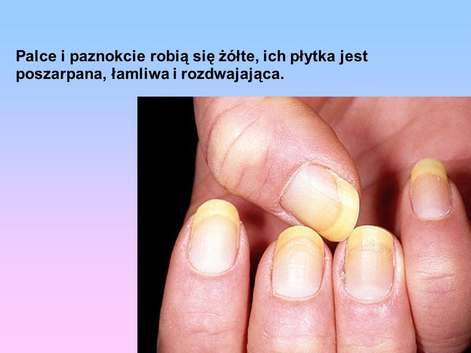 Palce i paznokcie robią się żółte, ich płytka jest poszarpana, łamliwa i rozdwajająca.