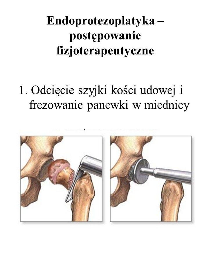 Endoprotezoplatyka – postępowanie fizjoterapeutyczne 1. Odcięcie szyjki kości udowej i frezowanie panewki w miednicy