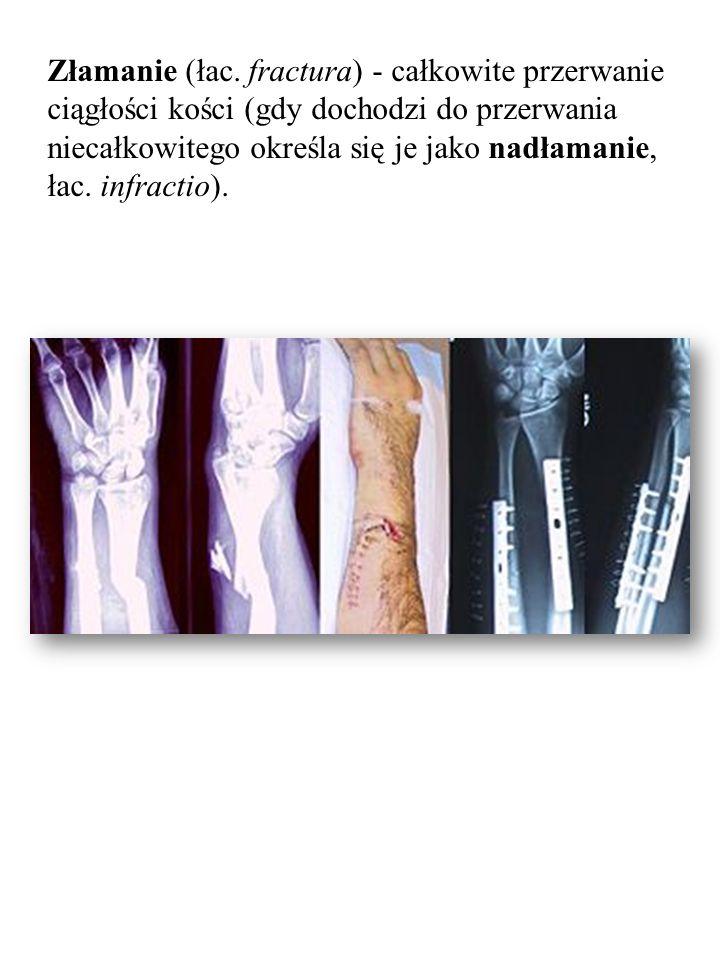 Złamanie (łac. fractura) - całkowite przerwanie ciągłości kości (gdy dochodzi do przerwania niecałkowitego określa się je jako nadłamanie, łac. infrac