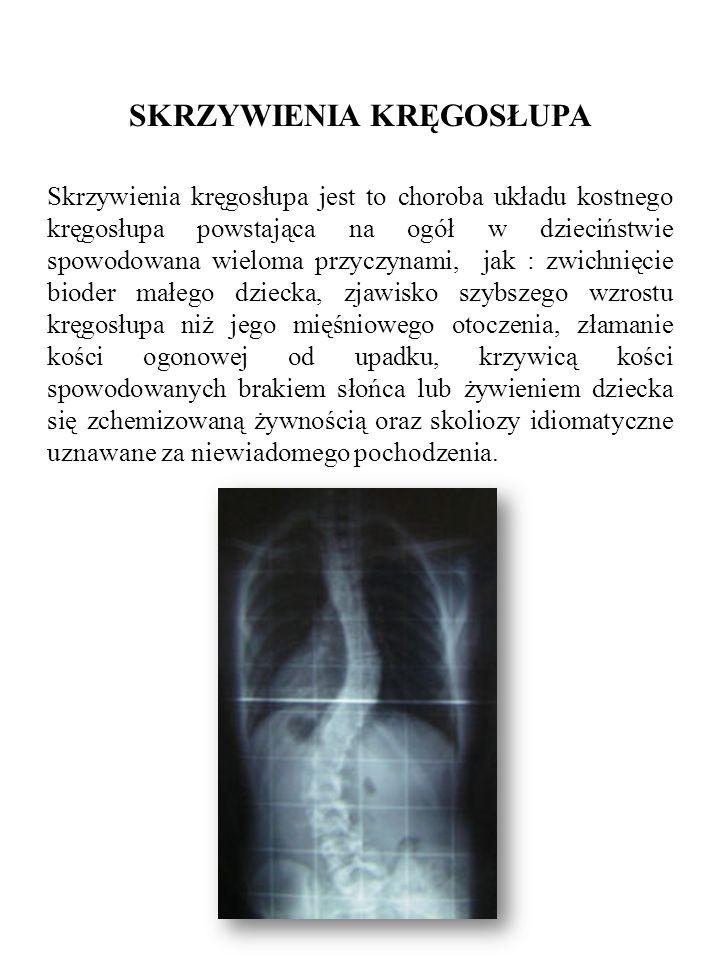 SKRZYWIENIA KRĘGOSŁUPA Skrzywienia kręgosłupa jest to choroba układu kostnego kręgosłupa powstająca na ogół w dzieciństwie spowodowana wieloma przyczy