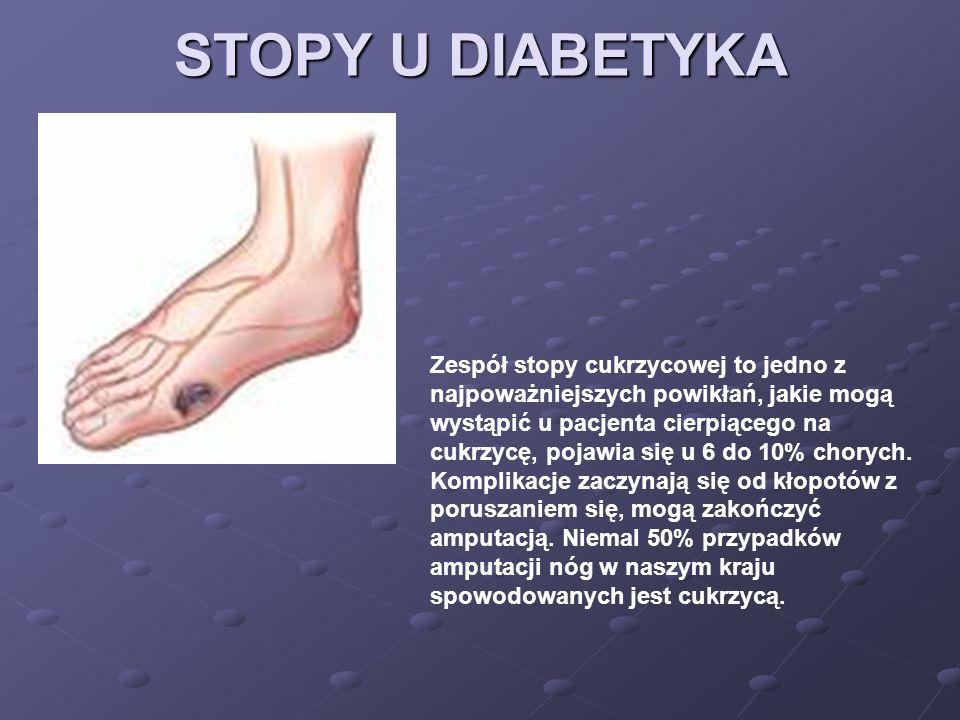 STOPY U DIABETYKA Zespół stopy cukrzycowej to jedno z najpoważniejszych powikłań, jakie mogą wystąpić u pacjenta cierpiącego na cukrzycę, pojawia się