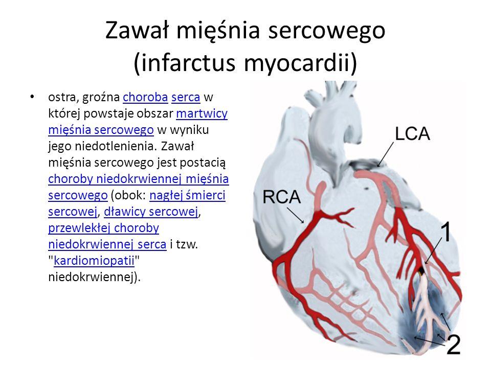 Zawał mięśnia sercowego (infarctus myocardii) ostra, groźna choroba serca w której powstaje obszar martwicy mięśnia sercowego w wyniku jego niedotleni