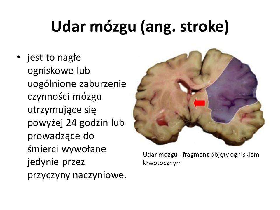 Udar mózgu (ang. stroke) jest to nagłe ogniskowe lub uogólnione zaburzenie czynności mózgu utrzymujące się powyżej 24 godzin lub prowadzące do śmierci
