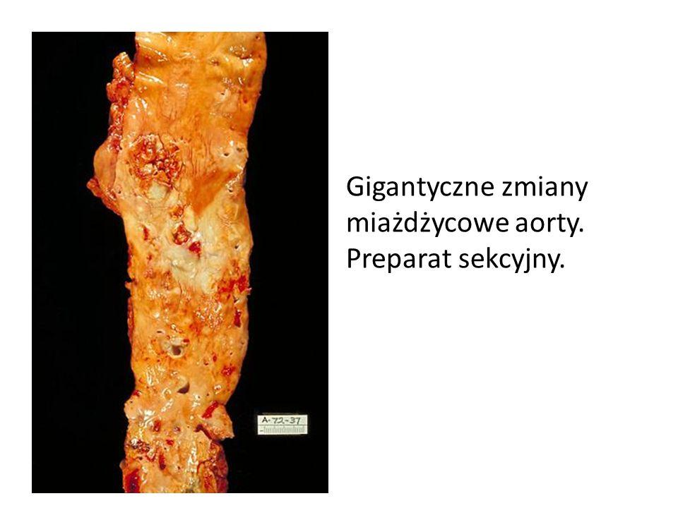 Gigantyczne zmiany miażdżycowe aorty. Preparat sekcyjny.