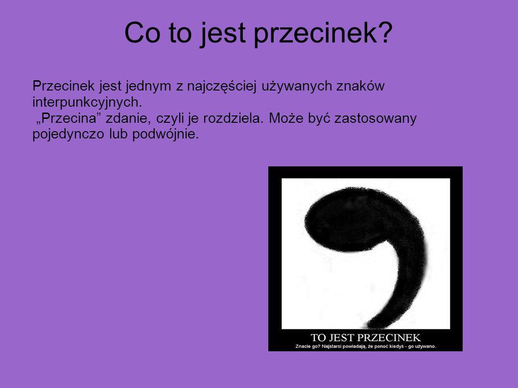 Ogólne zasady stosowania przecinków W języku polskim stosowanie przecinków jest związane przede wszystkim z budową zdania.