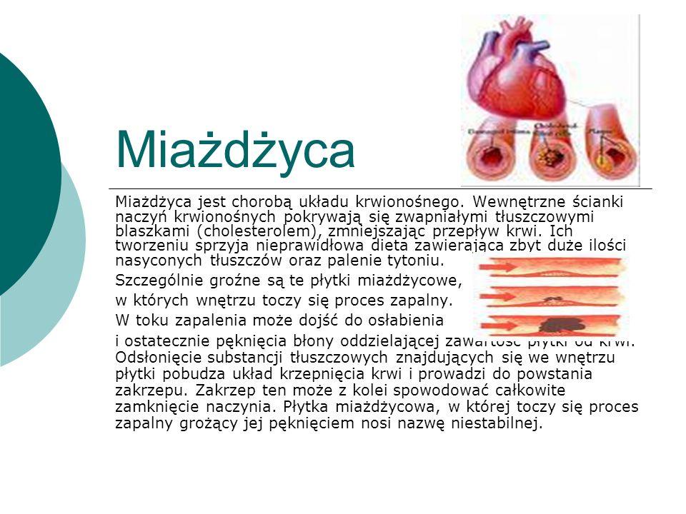 Miażdżyca Miażdżyca jest chorobą układu krwionośnego. Wewnętrzne ścianki naczyń krwionośnych pokrywają się zwapniałymi tłuszczowymi blaszkami (cholest