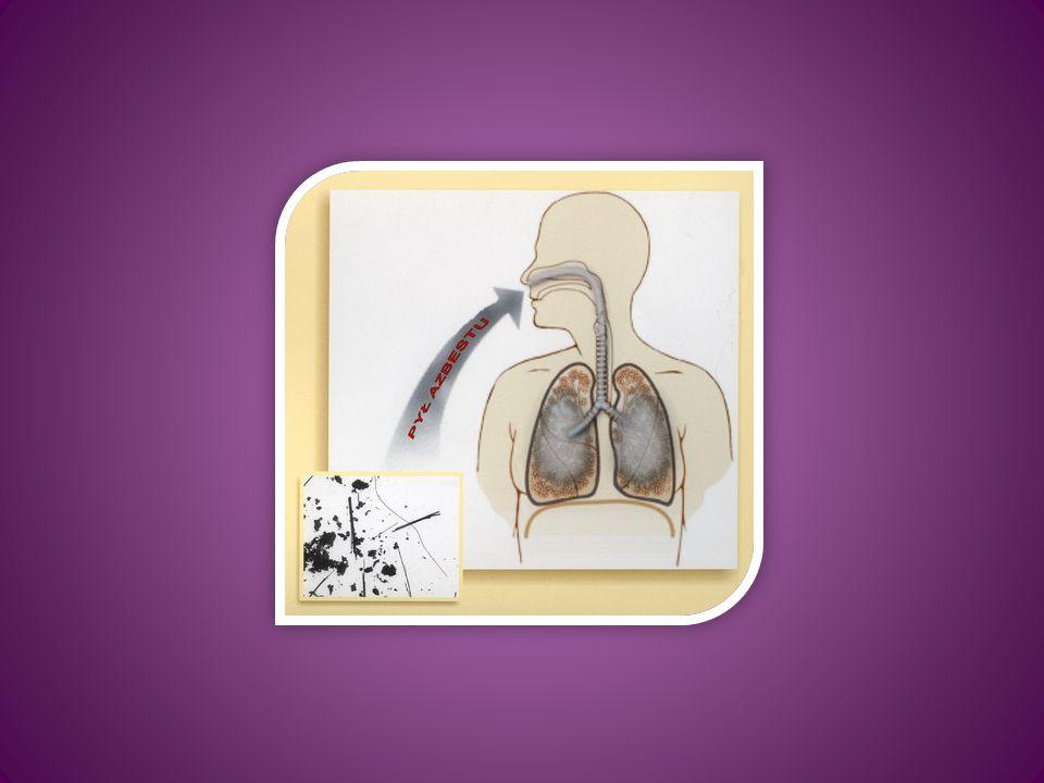 Pylica azbestowa (inaczej azbestoza) – choroba płuc, będąca wynikiem wieloletniego wdychiwania włókien azbestowych o mikroskopijnych rozmiarach (20-50 µm).