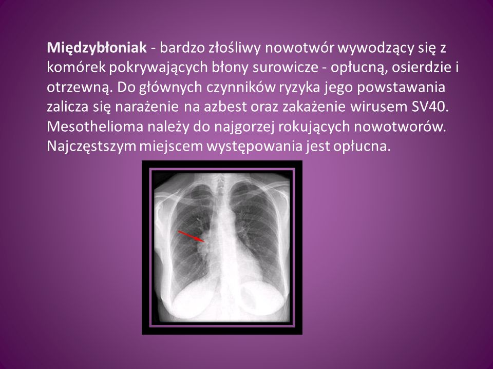 Wykonały: Edyta Tokarczyk Monika Bochnak Natalia Sabak