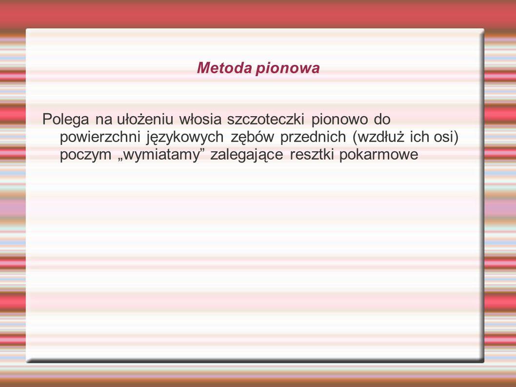 Metoda pionowa Polega na ułożeniu włosia szczoteczki pionowo do powierzchni językowych zębów przednich (wzdłuż ich osi) poczym wymiatamy zalegające re
