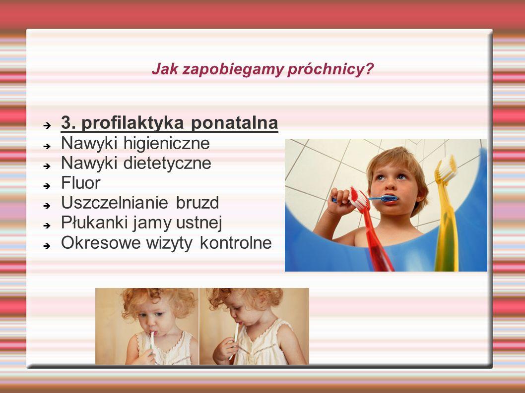 Jak zapobiegamy próchnicy? 3. profilaktyka ponatalna Nawyki higieniczne Nawyki dietetyczne Fluor Uszczelnianie bruzd Płukanki jamy ustnej Okresowe wiz