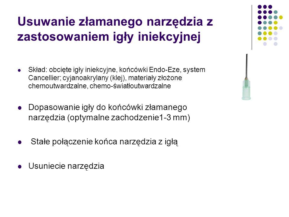 Usuwanie złamanego narzędzia z zastosowaniem igły iniekcyjnej Skład: obcięte igły iniekcyjne, końcówki Endo-Eze, system Cancellier; cyjanoakrylany (kl