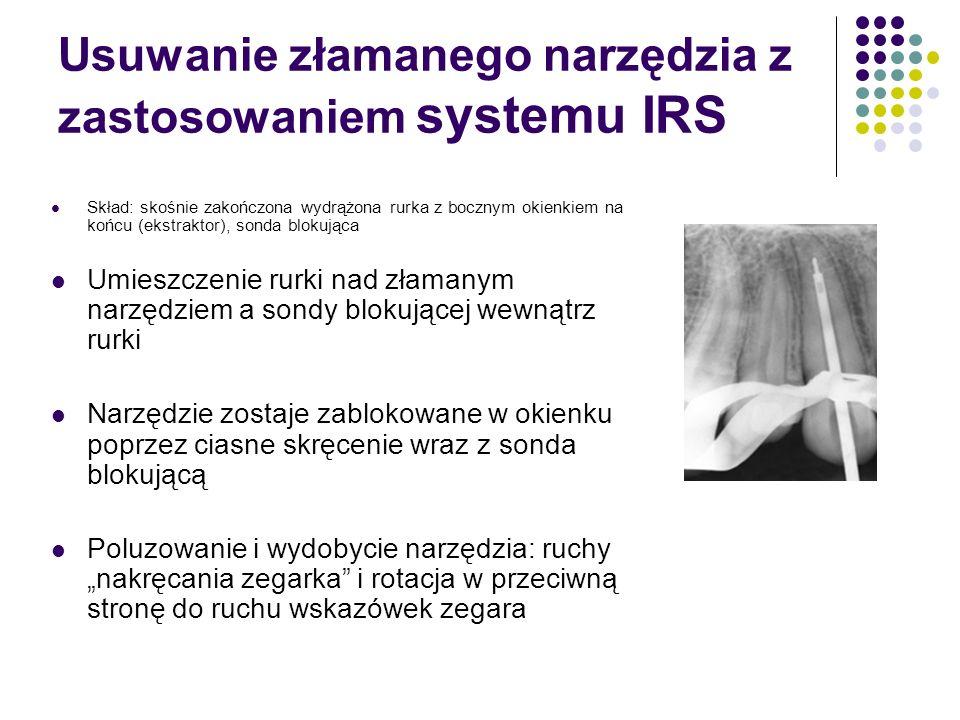 Usuwanie złamanego narzędzia z zastosowaniem systemu IRS Skład: skośnie zakończona wydrążona rurka z bocznym okienkiem na końcu (ekstraktor), sonda bl