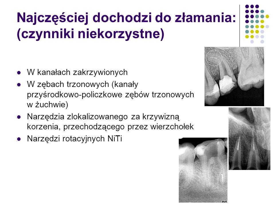 Najczęściej dochodzi do złamania: (czynniki niekorzystne) W kanałach zakrzywionych W zębach trzonowych (kanały przyśrodkowo-policzkowe zębów trzonowyc