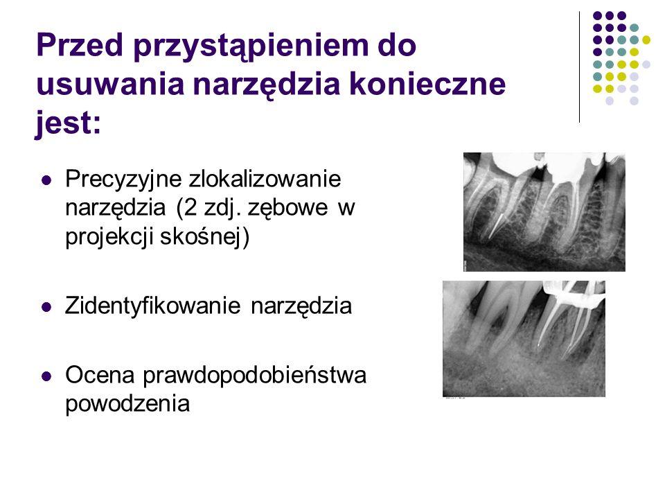 Przed przystąpieniem do usuwania narzędzia konieczne jest: Precyzyjne zlokalizowanie narzędzia (2 zdj. zębowe w projekcji skośnej) Zidentyfikowanie na