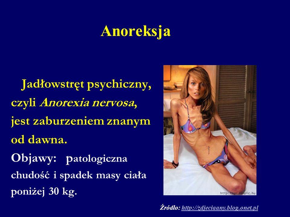 Anoreksja Jadłowstręt psychiczny, czyli Anorexia nervosa, jest zaburzeniem znanym od dawna. Objawy: p atologiczna chudość i spadek masy ciała poniżej