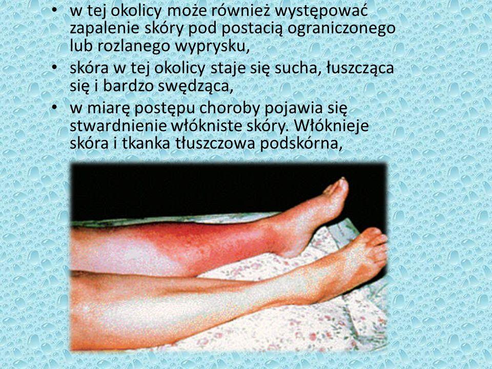 w tej okolicy może również występować zapalenie skóry pod postacią ograniczonego lub rozlanego wyprysku, skóra w tej okolicy staje się sucha, łuszcząc