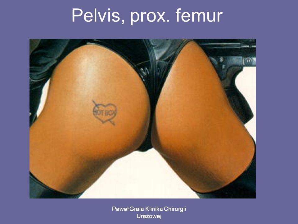 Paweł Grala Klinika Chirurgii Urazowej Pelvis, prox. femur