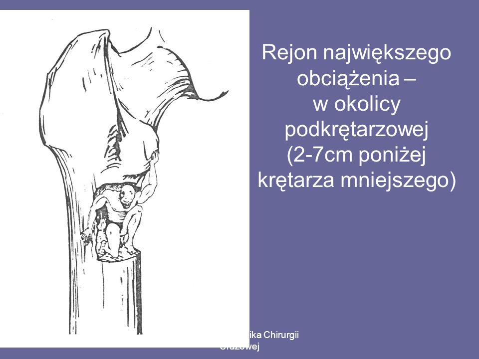 Paweł Grala Klinika Chirurgii Urazowej Rejon największego obciążenia – w okolicy podkrętarzowej (2-7cm poniżej krętarza mniejszego)