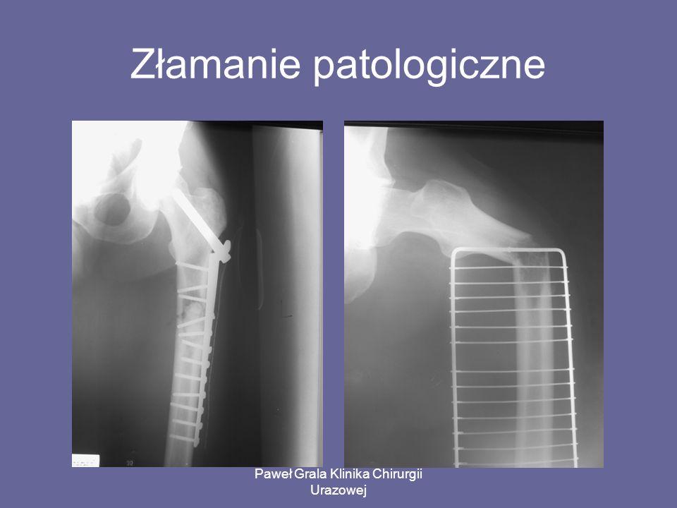 Paweł Grala Klinika Chirurgii Urazowej Złamanie patologiczne