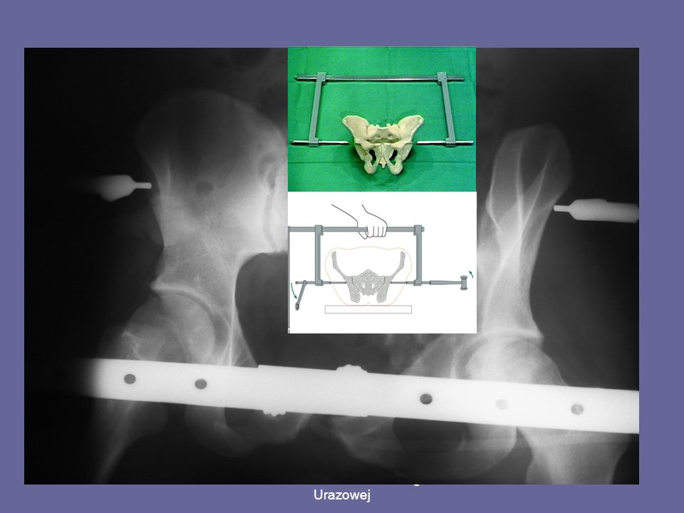 Klamra C (C-clamp) cases of sacrum fractures or disruptions of the sacroiliac joint – posterior pelvic ring inj.