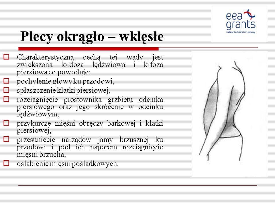 Plecy okrągło – wklęsłe Charakterystyczną cechą tej wady jest zwiększona lordoza lędźwiowa i kifoza piersiowa co powoduje: pochylenie głowy ku przodow