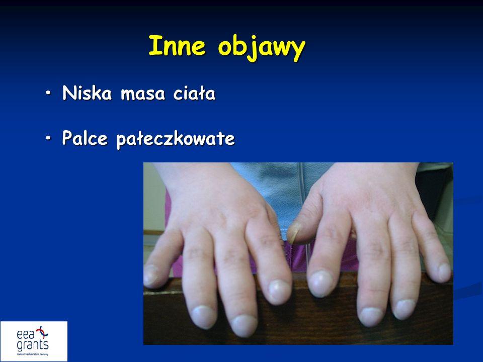 Inne objawy Niska masa ciała Niska masa ciała Palce pałeczkowate Palce pałeczkowate