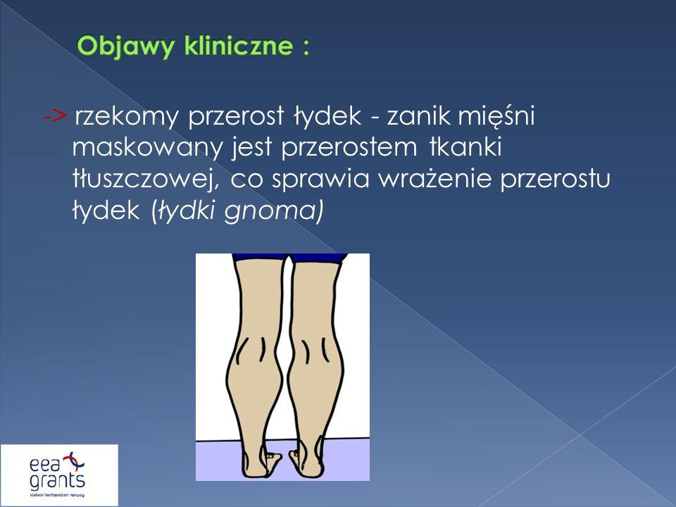 -> rzekomy przerost łydek - zanik mięśni maskowany jest przerostem tkanki tłuszczowej, co sprawia wrażenie przerostu łydek (łydki gnoma)