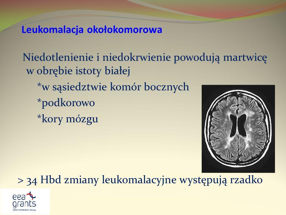 Leukomalacja okołokomorowa Niedotlenienie i niedokrwienie powodują martwicę w obrębie istoty białej *w sąsiedztwie komór bocznych *podkorowo *kory móz