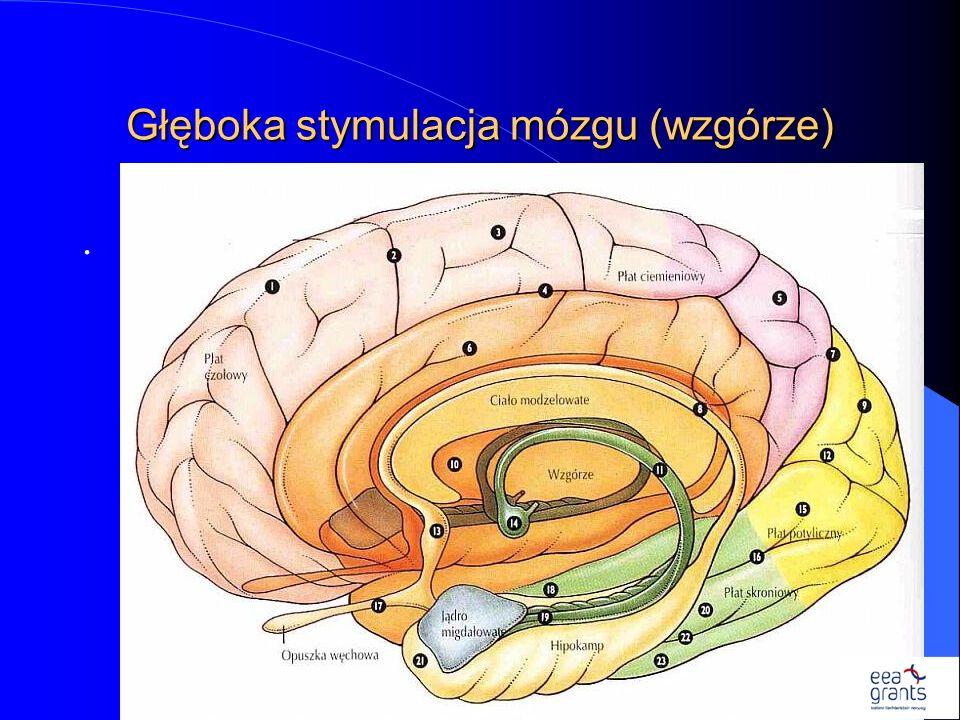 Głęboka stymulacja mózgu (wzgórze).