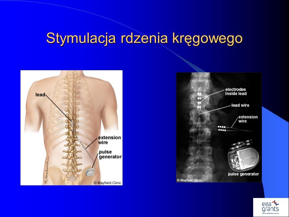 Stymulacja rdzenia kręgowego..