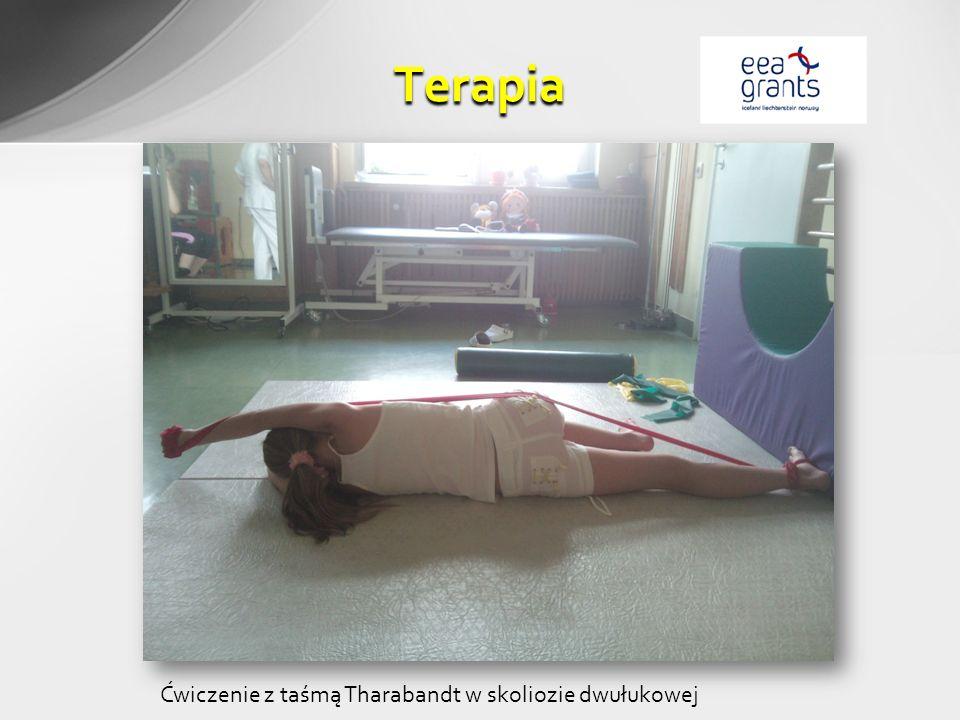 Terapia Ćwiczenie z taśmą Tharabandt w skoliozie dwułukowej
