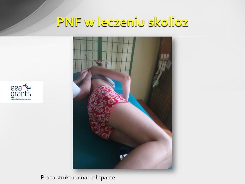 PNF w leczeniu skolioz Praca strukturalna na łopatce