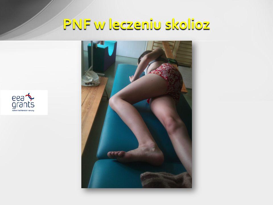 PNF w leczeniu skolioz
