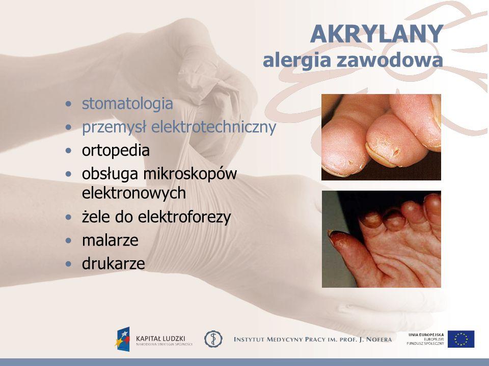 AKRYLANY alergia zawodowa stomatologia przemysł elektrotechniczny ortopedia obsługa mikroskopów elektronowych żele do elektroforezy malarze drukarze