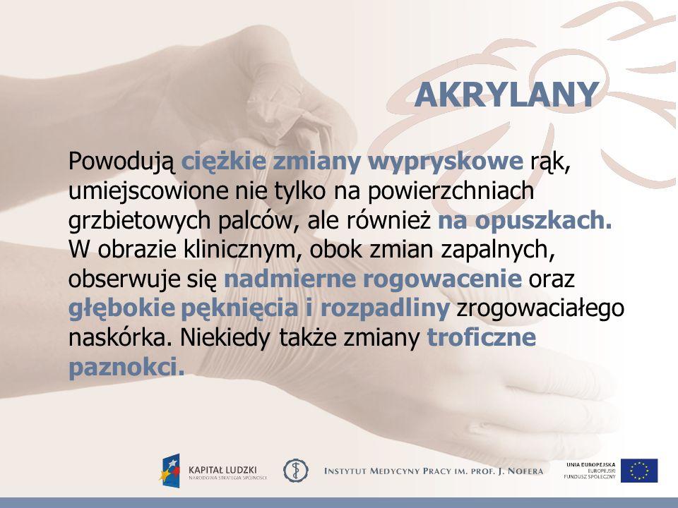 AKRYLANY Powodują ciężkie zmiany wypryskowe rąk, umiejscowione nie tylko na powierzchniach grzbietowych palców, ale również na opuszkach.