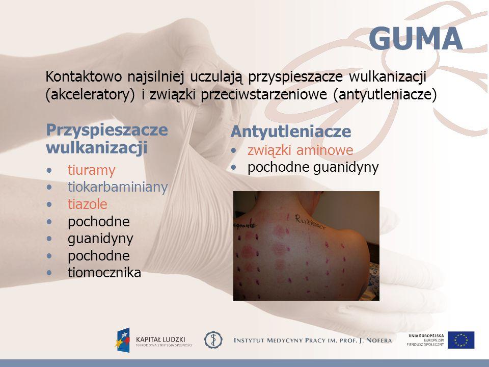 GUMA tiuramy tiokarbaminiany tiazole pochodne guanidyny pochodne tiomocznika związki aminowe pochodne guanidyny Przyspieszacze wulkanizacji Antyutleniacze Kontaktowo najsilniej uczulają przyspieszacze wulkanizacji (akceleratory) i związki przeciwstarzeniowe (antyutleniacze)