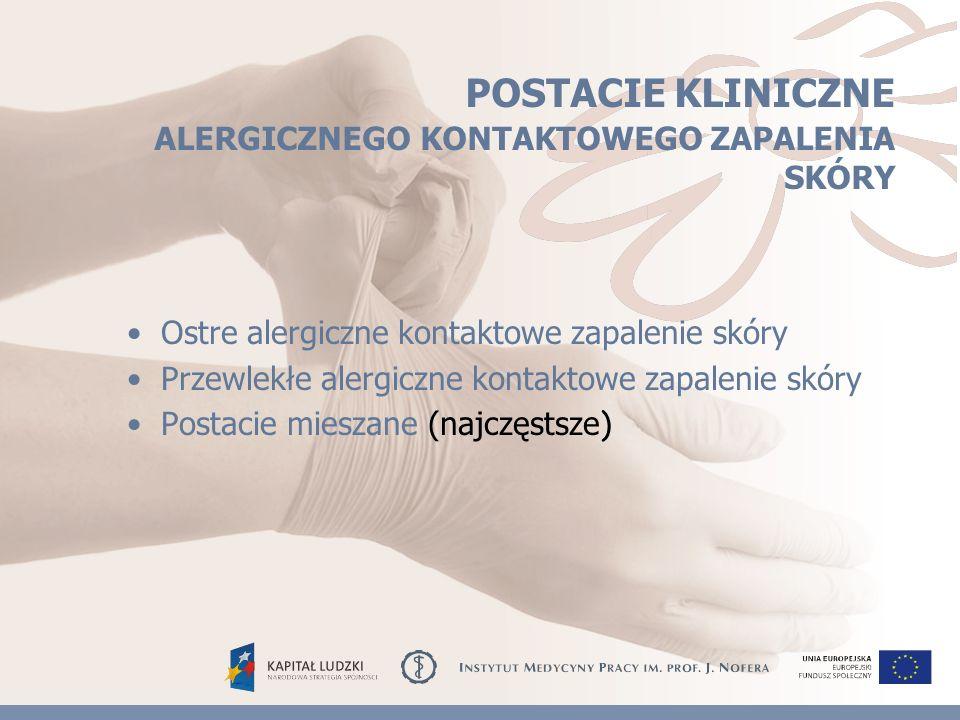 POSTACIE KLINICZNE ALERGICZNEGO KONTAKTOWEGO ZAPALENIA SKÓRY Ostre alergiczne kontaktowe zapalenie skóry Przewlekłe alergiczne kontaktowe zapalenie skóry Postacie mieszane (najczęstsze )