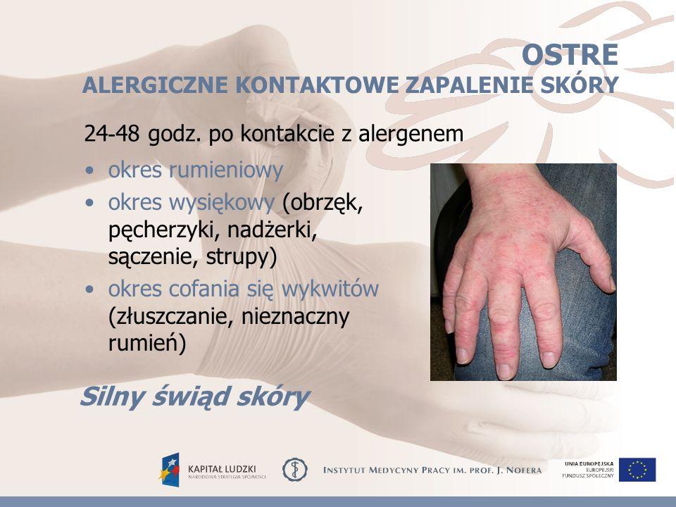 ŻYWICE EPOKSYDOWE powodują ciężkie, rozległe, uporczywe, rozsiane zmiany wypryskowe skóry powstają po stosunkowo krótkim okresie narażenia utrzymują się długo, mimo zmiany stanowiska testy naskórkowe rzadko się negatywizują mogą być przyczyną ubytków owłosienia (brwi i rzęsy) oraz zmian troficznych paznokci powodują powstawanie wyprysku Obraz kliniczny POWIETRZNOPOCHODNEGO (airborne dermatitis)