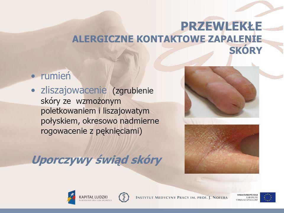 PRZEWLEKŁE ALERGICZNE KONTAKTOWE ZAPALENIE SKÓRY rumień zliszajowacenie (zgrubienie skóry ze wzmożonym poletkowaniem i liszajowatym połyskiem, okresowo nadmierne rogowacenie z pęknięciami) Uporczywy świąd skóry