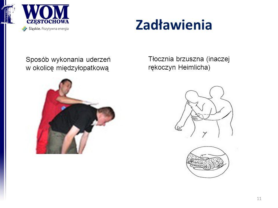 Zadławienia 11 Sposób wykonania uderzeń w okolicę międzyłopatkową Tłocznia brzuszna (inaczej rękoczyn Heimlicha)