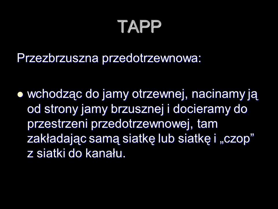 TAPP Przezbrzuszna przedotrzewnowa: wchodząc do jamy otrzewnej, nacinamy ją od strony jamy brzusznej i docieramy do przestrzeni przedotrzewnowej, tam