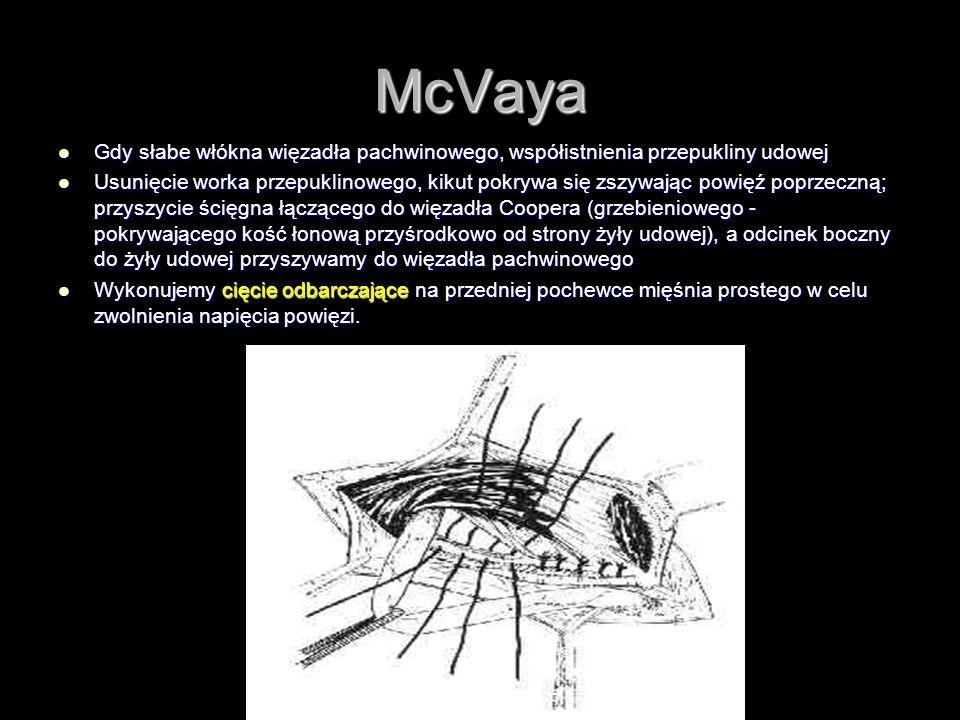 McVaya Gdy słabe włókna więzadła pachwinowego, współistnienia przepukliny udowej Gdy słabe włókna więzadła pachwinowego, współistnienia przepukliny ud
