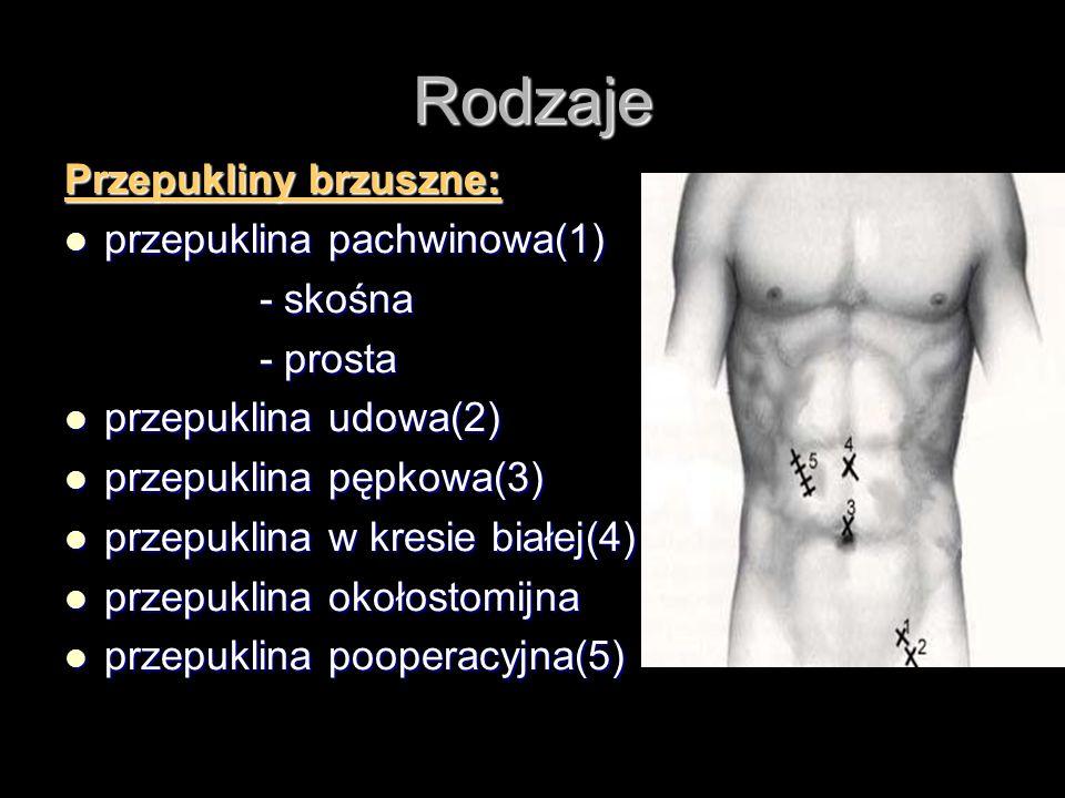 Rodzaje Przepukliny brzuszne: przepuklina pachwinowa(1) przepuklina pachwinowa(1) - skośna - skośna - prosta - prosta przepuklina udowa(2) przepuklina