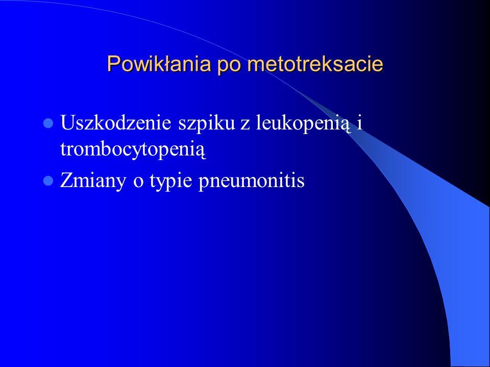 Powikłania po metotreksacie Uszkodzenie szpiku z leukopenią i trombocytopenią Zmiany o typie pneumonitis