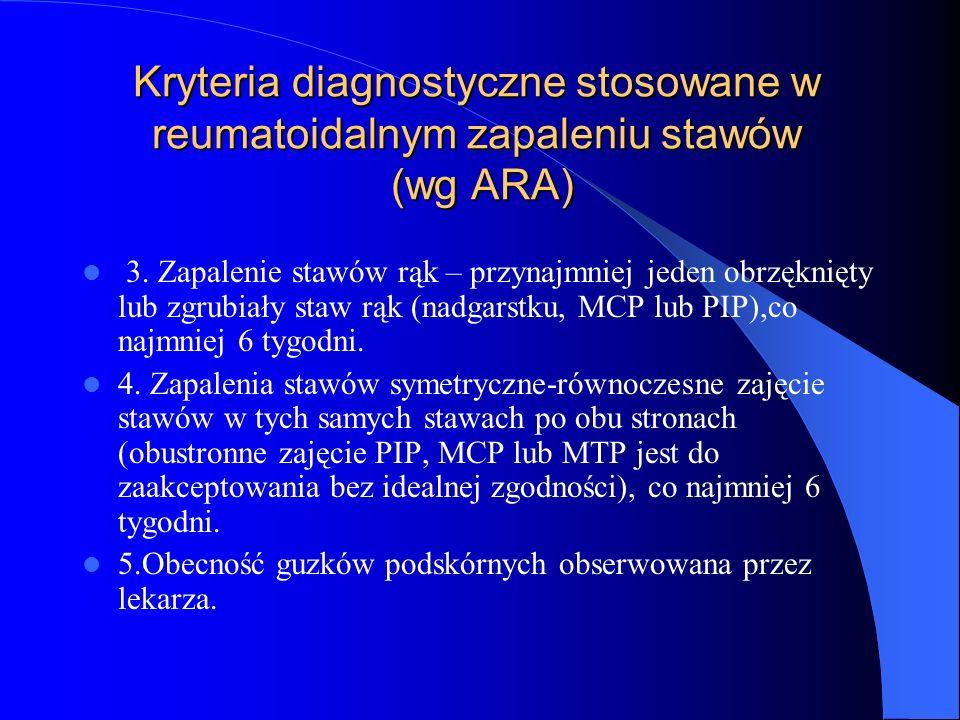 Kryteria diagnostyczne stosowane w reumatoidalnym zapaleniu stawów (wg ARA) 3. Zapalenie stawów rąk – przynajmniej jeden obrzęknięty lub zgrubiały sta