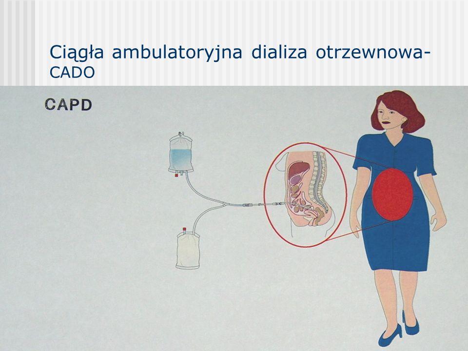 Ciągła ambulatoryjna dializa otrzewnowa- CADO