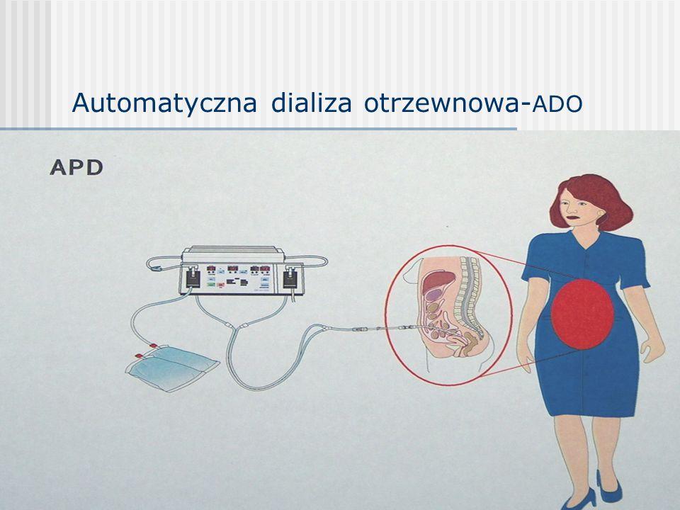 Automatyczna dializa otrzewnowa- ADO