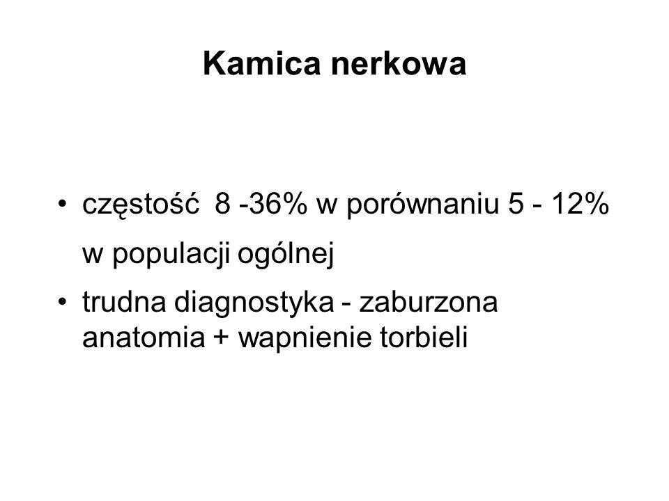 Kamica nerkowa częstość 8 -36% w porównaniu 5 - 12% w populacji ogólnej trudna diagnostyka - zaburzona anatomia + wapnienie torbieli