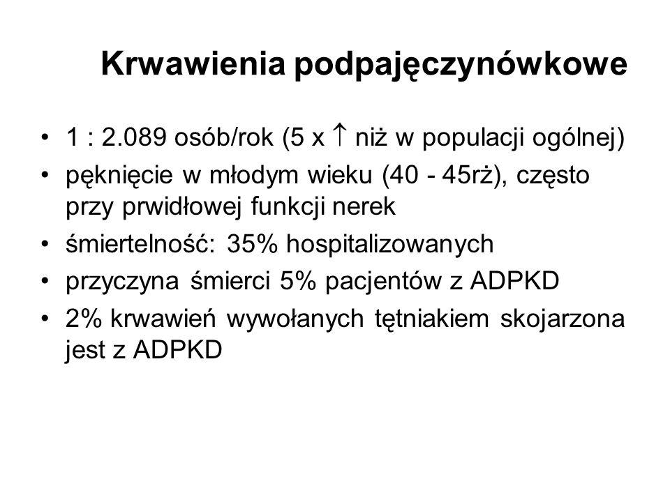 Krwawienia podpajęczynówkowe 1 : 2.089 osób/rok (5 x niż w populacji ogólnej) pęknięcie w młodym wieku (40 - 45rż), często przy prwidłowej funkcji ner
