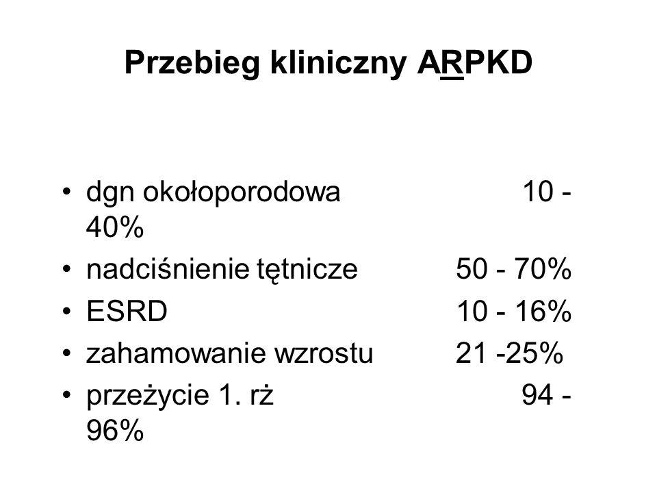 Przebieg kliniczny ARPKD dgn okołoporodowa10 - 40% nadciśnienie tętnicze50 - 70% ESRD10 - 16% zahamowanie wzrostu21 -25% przeżycie 1. rż94 - 96%